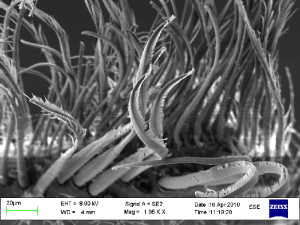 Detalj av hår på Maxilliped fra Exitomelita sigynae. Foto AHS Tandberg